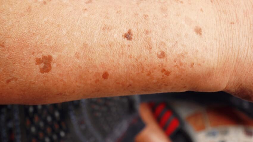 Taches solaires : comment leur faire la peau