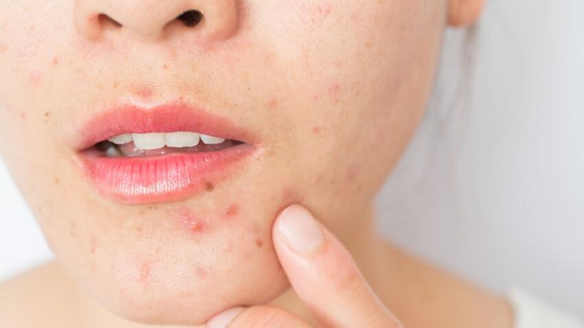"""Acné : connaissez-vous """"Free the pimple"""", ce mouvement qui consiste à dévoiler ses boutons sur Instagram ?"""