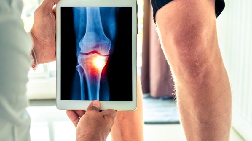 Arthrose du genou : un nouveau gel pour remplacer le cartilage ?