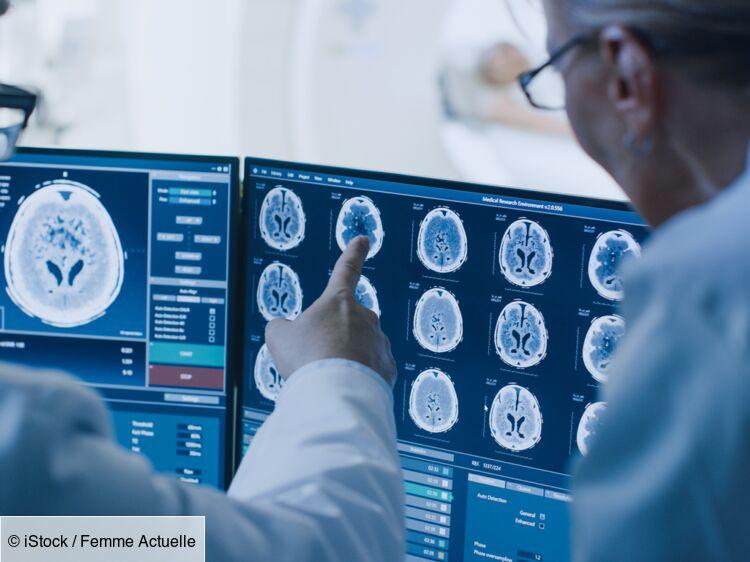 AVC, lésions, délire... Des problèmes cérébraux possibles, même pour les formes bénignes de Covid-19