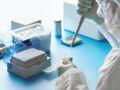 Leucocyturie: que signifie la présence de leucocytes dans les urines?