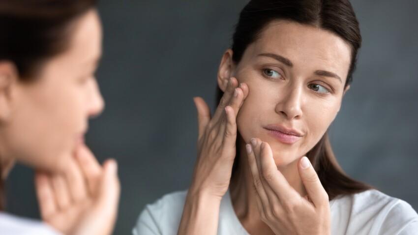 Desquamation : pourquoi a-t-on la peau qui pèle et comment y remédier ?