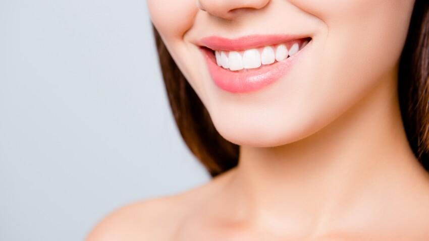 Dents blanches : des dentistes alertent sur cette dangereuse astuce qui circule sur les réseaux sociaux