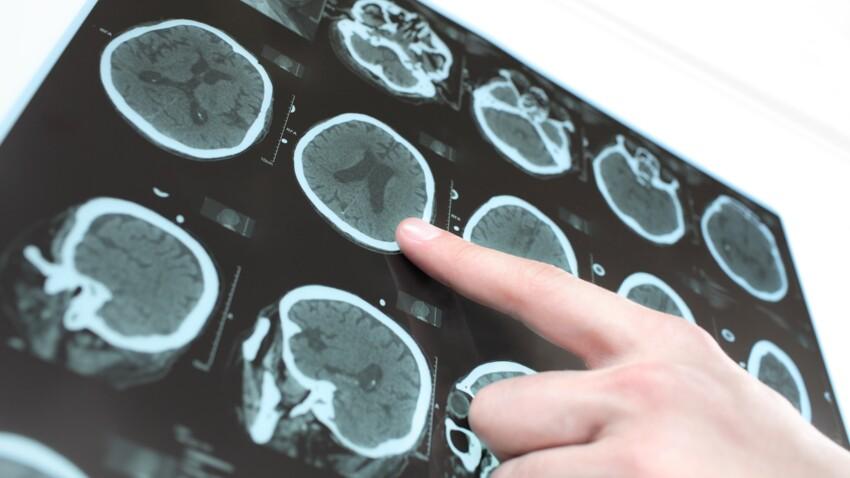 Syndrome de West : quelle est cette forme rare d'épilepsie qui touche les enfants ?