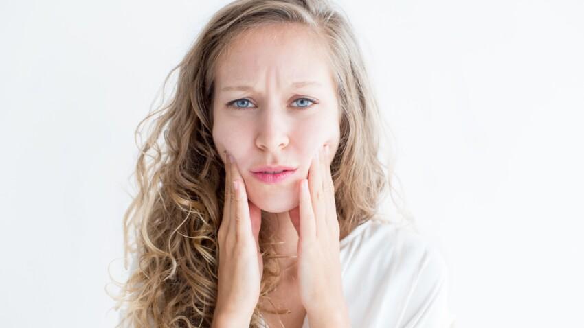 Syndrome d'Ehlers-Danlos : quels sont les symptômes de cette maladie héréditaire ?