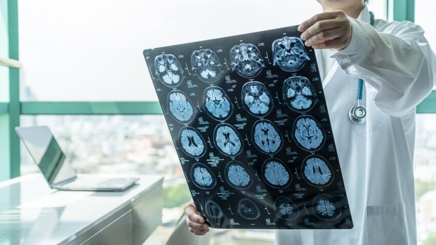 Encéphalopathie: quels sont les symptômes et les traitements?