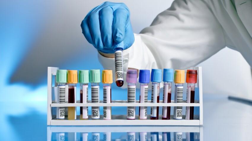 Monocytes élevés: comment interpréter ses analyses sanguines?