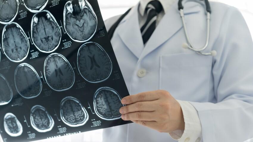 Hématome sous dural (HSD) : quels sont les symptômes qui doivent alerter ?