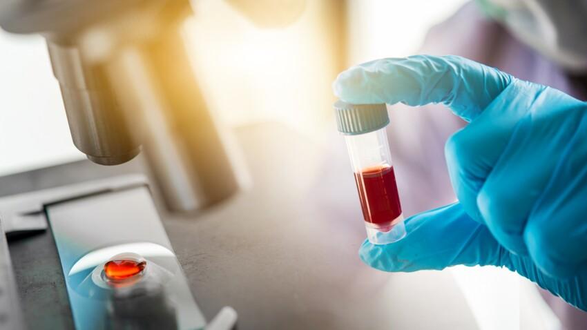 Anisocytose: comment expliquer cette anomalie sanguine et quand s'inquiéter?