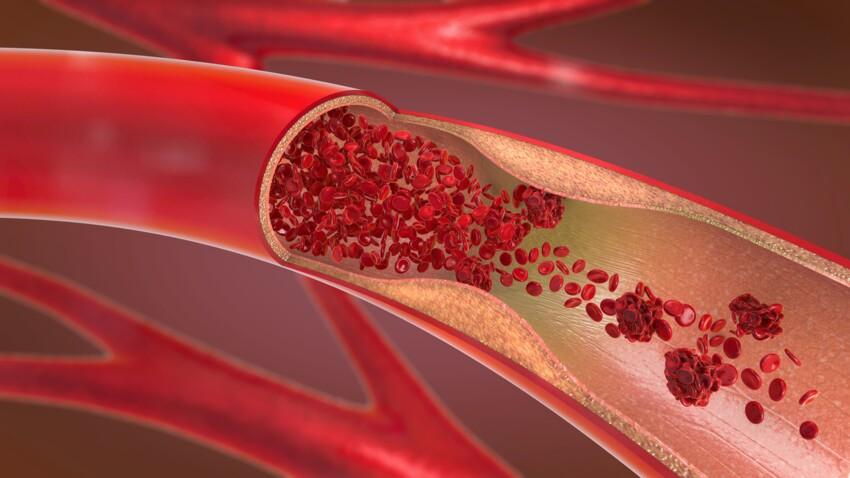 Vascularites: ce qu'il faut savoir sur ces maladies inflammatoires des vaisseaux sanguins