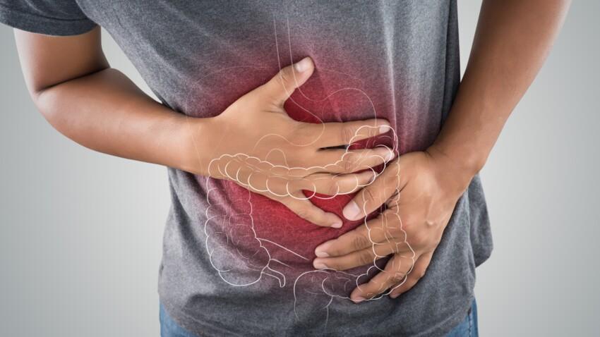 MICI : tout ce qu'il faut savoir sur les maladies inflammatoires chroniques de l'intestin