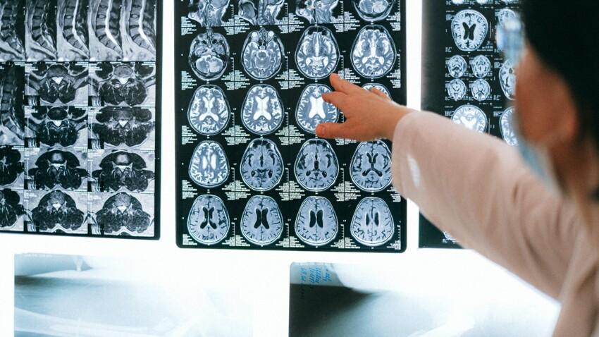 Ses fortes migraines étaient causées par des larves de ténia dans son cerveau