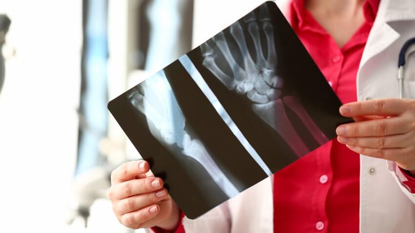 Radiographie : en quoi consiste cet examen d'imagerie médicale ?