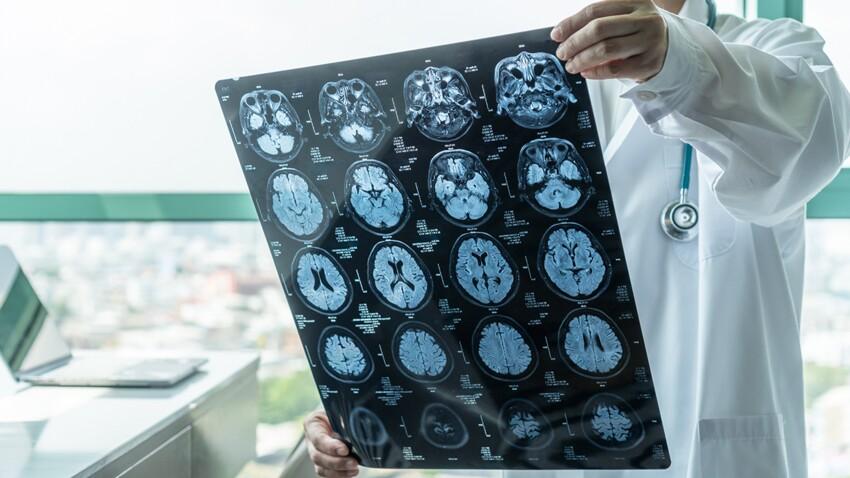 Alzheimer, parkinson, schizophrénie, épilepsie : des thérapies plus efficaces