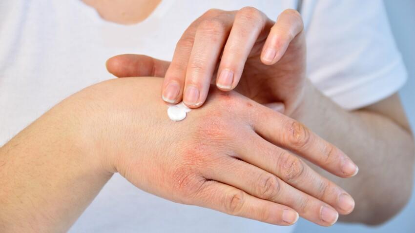 Engelures : comment éviter ces lésions cutanées et quels sont les traitements ?