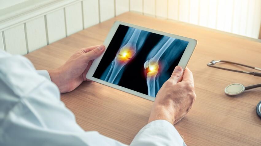 Diagnostiquer l'arthrose avant l'apparition des symptômes, bientôt possible ?