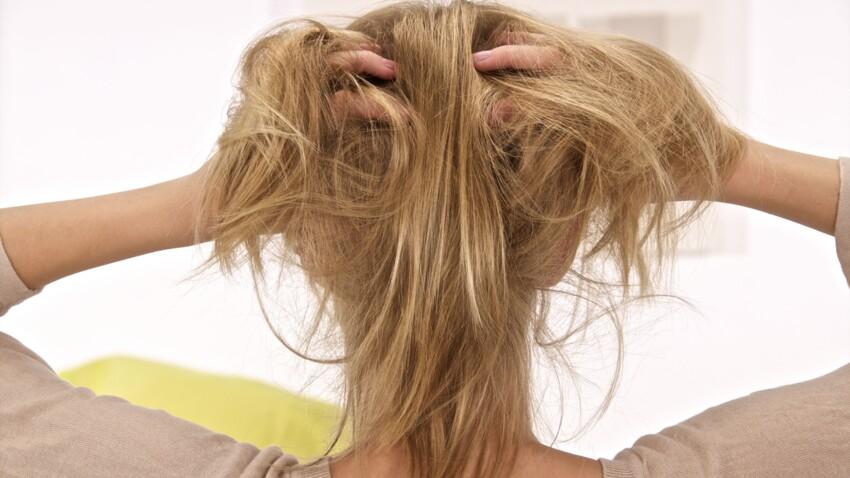 """""""Scalp popping"""" (ou fissuration des cheveux) : cette tendance capillaire à ne surtout pas reproduire"""