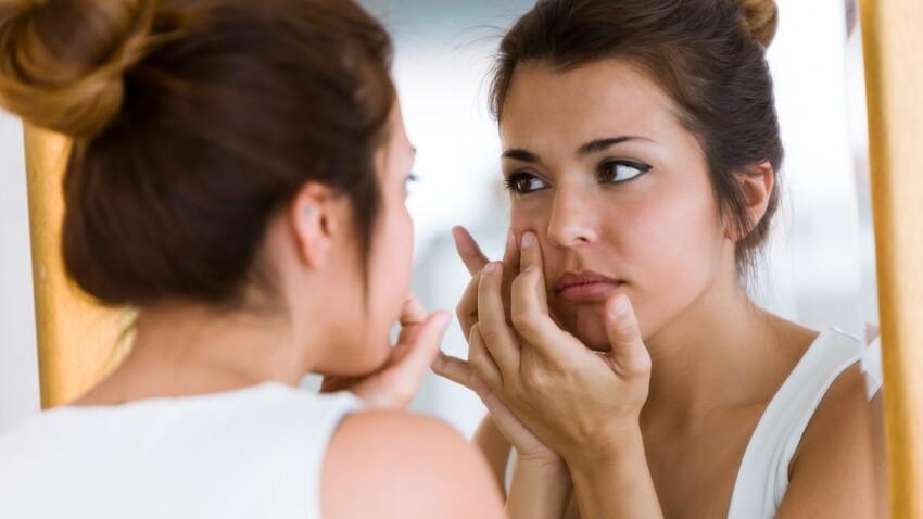 Quels sont les différents types d'acné et comment les distinguer ?