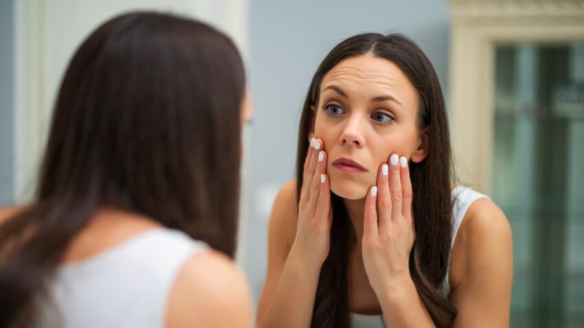 Plaque rouge sur le visage: d'où ça vient et comment s'en débarrasser?
