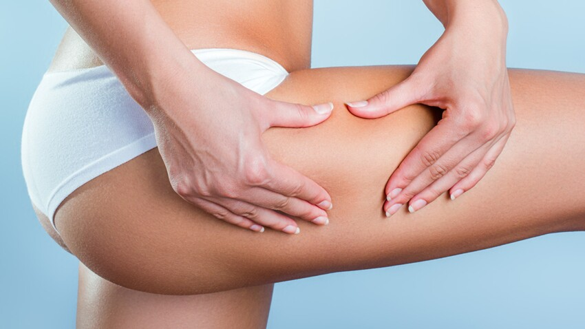 4 idées reçues sur la cellulite à oublier d'urgence