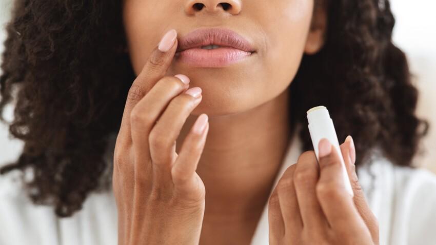 Lèvres gonflées: les différentes causes possibles et comment réagir