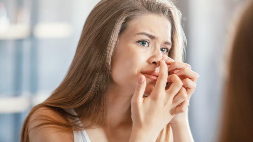 Kystes sébacés: 3 remèdes naturels pour les éliminer