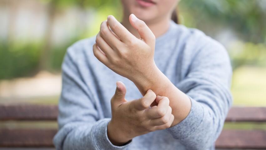 Bouton d'allergie: que faire en cas d'urticaire allergique?