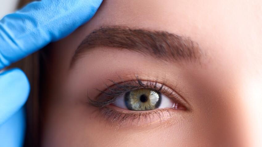 4 idées reçues sur la cataracte