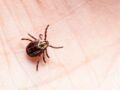 Maladie de Lyme : forte hausse des piqûres de tiques infectées dans les jardins privés, comment s'en protéger ?