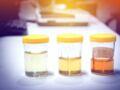Urine foncée : qu'est-ce que cela peut signifier ?