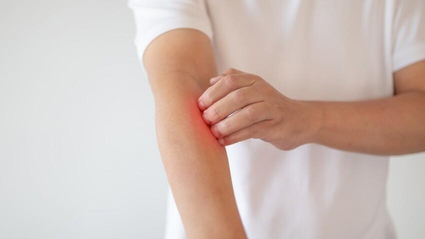 Psoriasis inversé : comment le reconnaître et quels sont les traitements ?