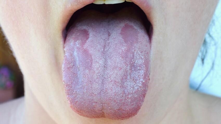 Langue blanche : faut-il s'inquiéter de ce symptôme ?