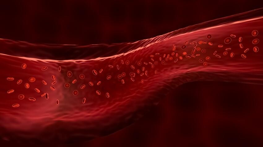 Caillot de sang(thrombose) : les symptômes à reconnaître et les différents traitements