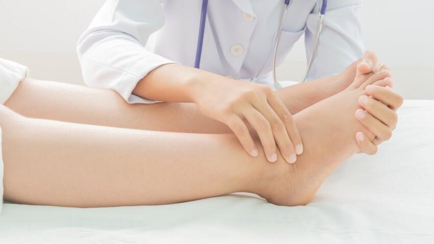 Jambes gonflées : les meilleures solutions pour se soulager rapidement
