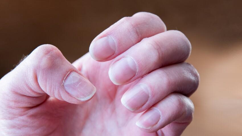 """""""Ongles Covid"""" : ce test tout simple pourrait confirmer que vous avez été infecté par le virus"""