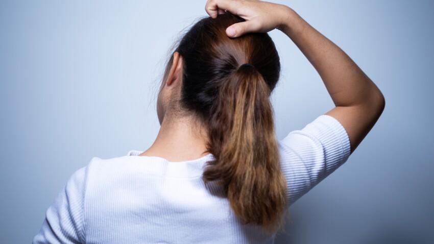 Bouton sur le cuir chevelu : les causes et les meilleurs remèdes