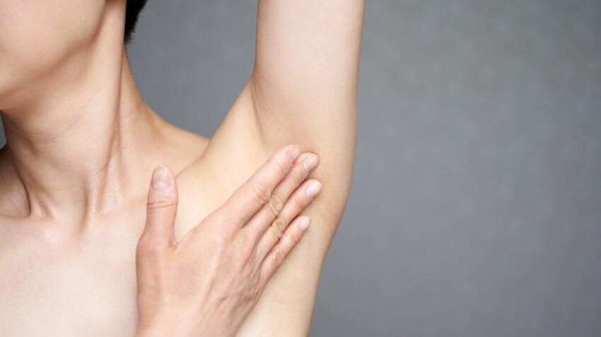 Maladie de Verneuil : les symptômes et les traitements de cette maladie de peau