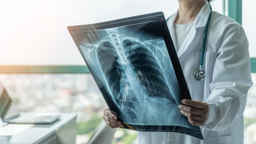 Pneumonie: quels sont les symptômes à reconnaître?