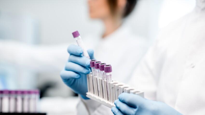 Anticorps anti-thyroglobuline: comment interpréter vos résultats sanguins