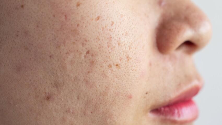 Les meilleures façons de traiter les cicatrices d'acné selon une dermatologue