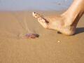 Piqûre de méduse : l'astuce à connaître pour soulager la douleur
