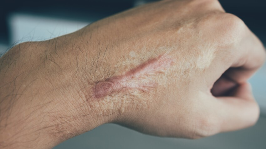 Cicatrice chéloïde : les meilleures traitements pour les atténuer
