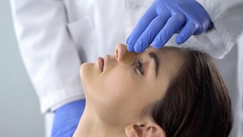 Chirurgie esthétique : cette technique moins connue pour remodeler son nez