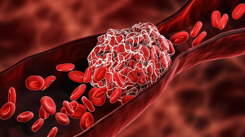 Covid long : des caillots sanguins anormaux repérés chez les patients atteints
