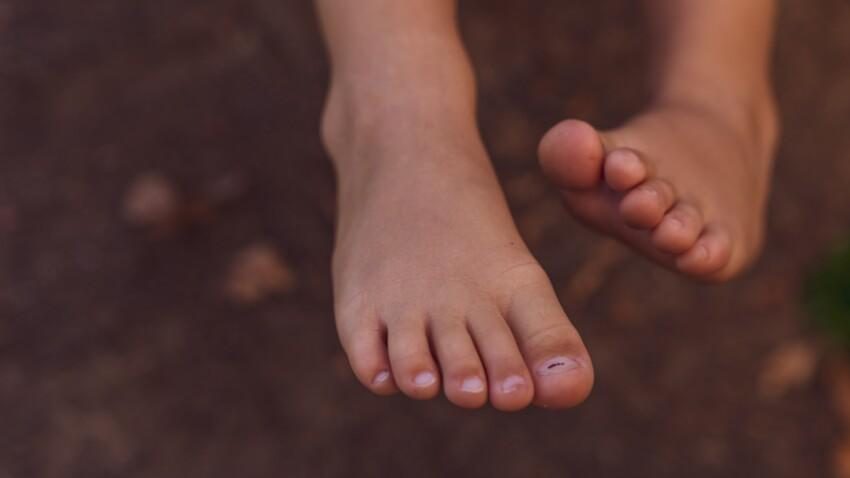 Orteils Covid : ce que l'on sait sur cet effet secondaire du virus qui rend les doigts de pieds douloureux