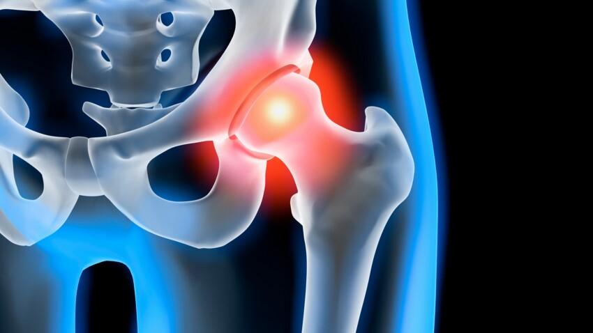 Chirurgie de la hanche : l'anesthésie locale est-elle la meilleure option ?