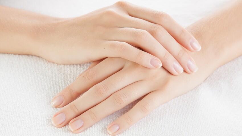 Ongles abîmés : 5 astuces pour les réparer