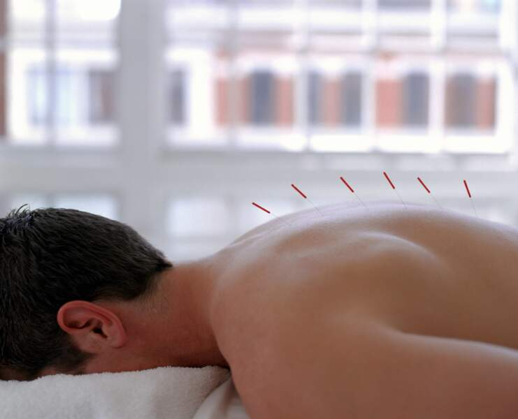 L'acupuncture japonaise : pour regagner en vitalité