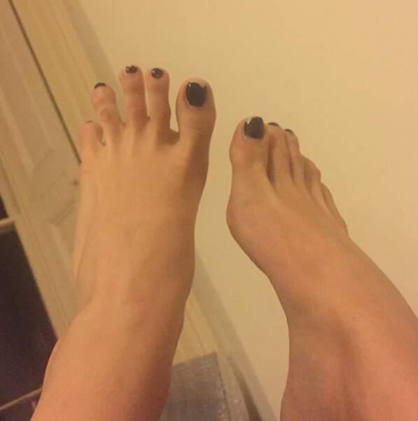 Ses pieds option vernis écaillé